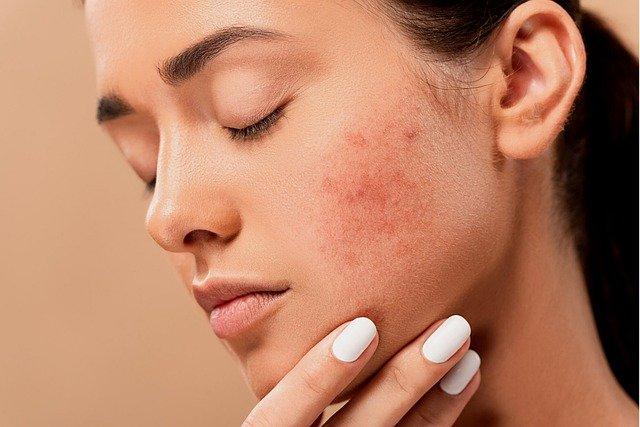 Femme avec un problème de peau