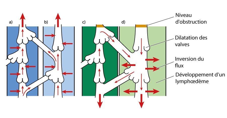 Illustration du lymphoedeme