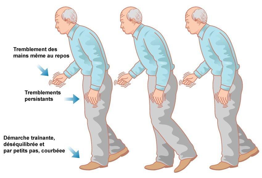 Caractéristiques de la maladie de Parkinson